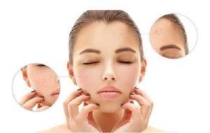 Nguyên nhân và triệu bệnh chàm da mặt